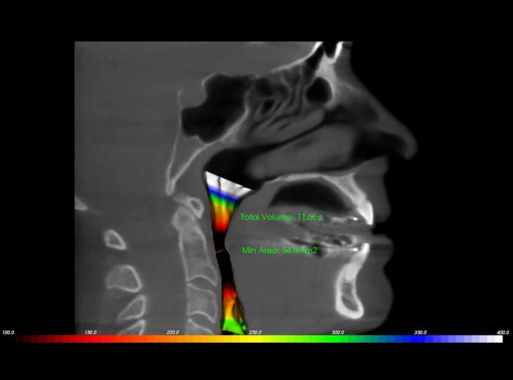 Airway Scan Taken With Intraoral Appliance